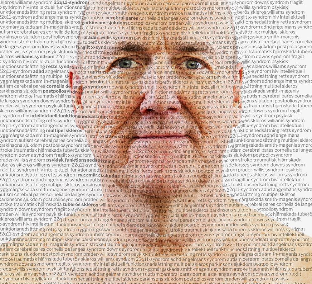 Åldras med diagnos foto Yanan Li