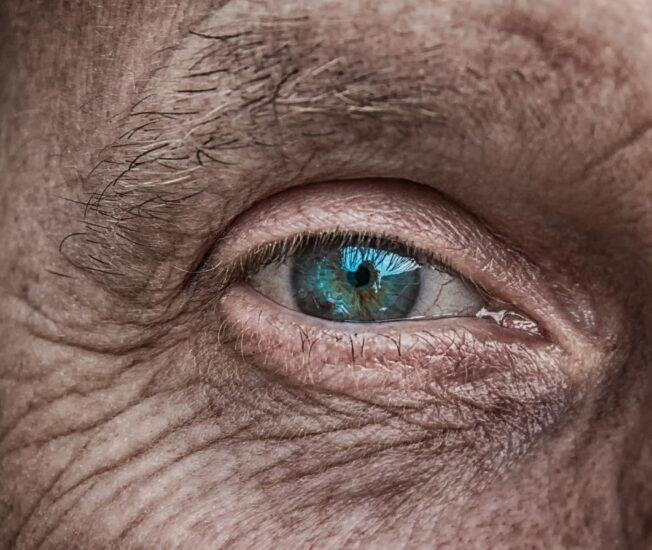 Rynkig hud kring öga.